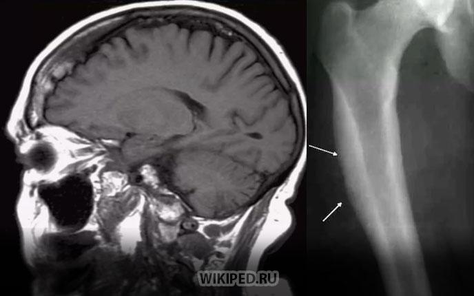 Поражение структуры кости